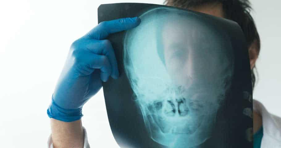 brain injury accidents attorney orange county
